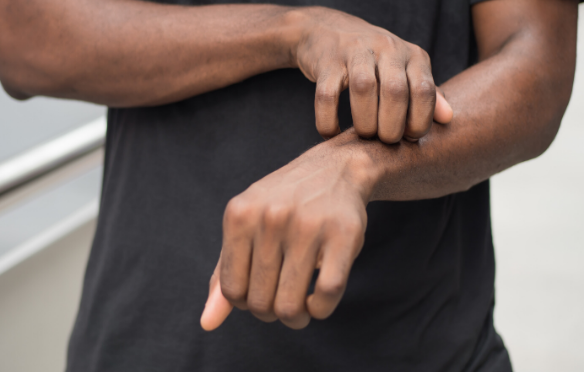 Close up of a man's arms where he is using one hand to scratch the other indicating some problem to the skin.