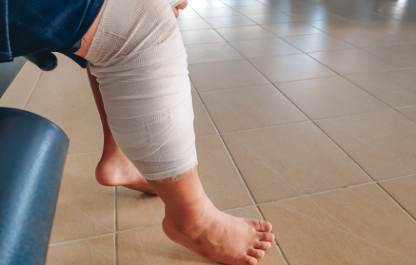 A leg of a patient with bandages around their leg.